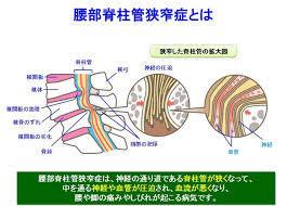 脊柱管狭窄症.jpg
